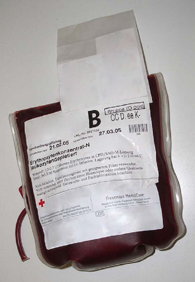 pediatric sickle cell anemia case study