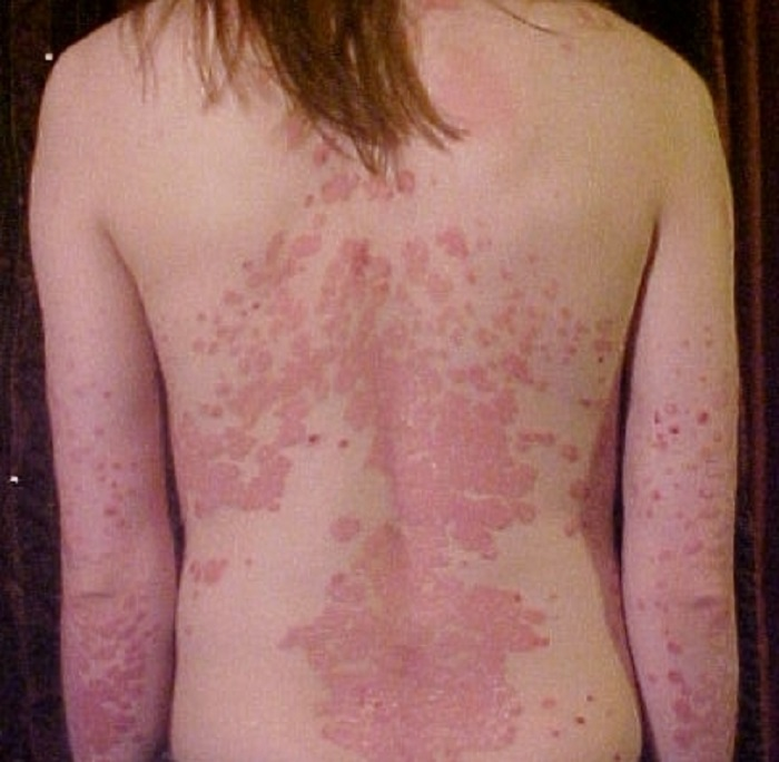Ho believes the connection between psoriasis and depression may be linked to the public's stigmatization of psoriasis 1
