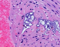 Pneumonia Bacterium Leaves behind Tiny Lesions in Heart, study.