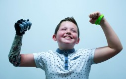 Nine Year Old Boy Is Fitted With A Bionic Arm