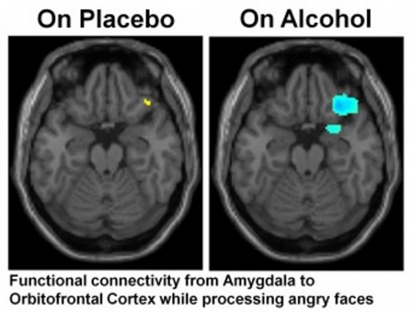 Areas of increased brain activity are labeled in yellow, and areas of decreased brain activity are labeled in blue.