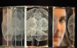 Boston University researchers discover a thinning in brain regions associated with concussions.