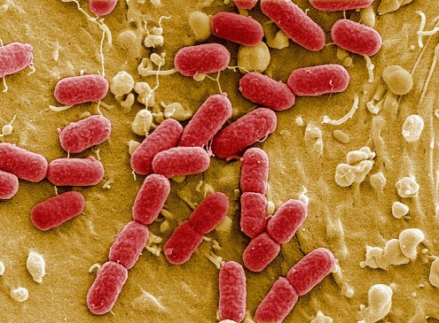 Hebrew University Discovers How Bacteria Outsmarts The Human Immune System