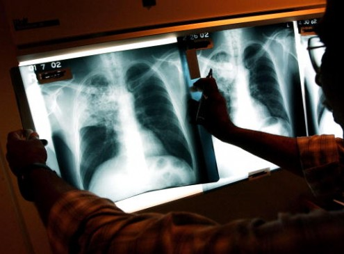 University Of Southampton Researchers Develop 3D System To Fight Tuberculosis