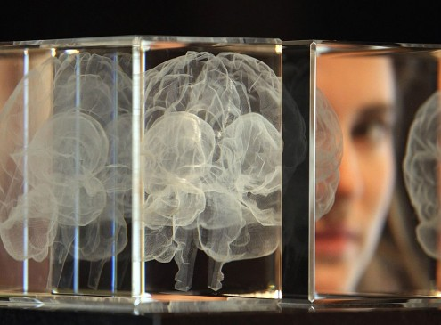 University of North Carolina-Chapel Hill Finds Autism Clues In Early Brain Development