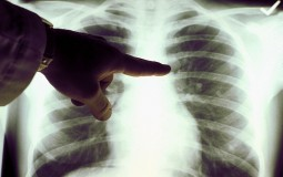 Students from the University of California San Francisco Discover Lungs New Function