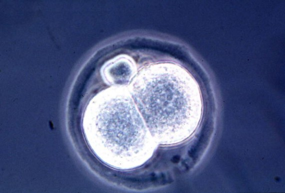 Microscopic View Of A Two Cell Mouse Embryo A Result Of A New And Relatively Simple Cloning Techniq